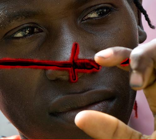 Aids, un approccio globale